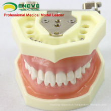 DENTAL04(12563) Anatomical Model Type Dental Study Models with Soft Gum
